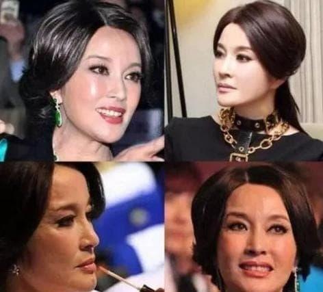 Vương Tâm Lăng, Trương Mông, Lưu Hiểu Khánh, sao hoa ngữ, phẫu thuật thẩm mỹ